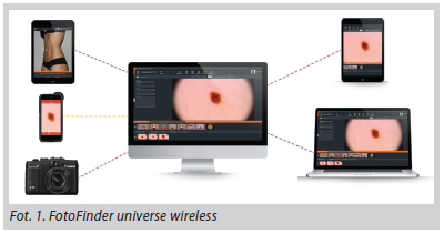 Universe Wireless